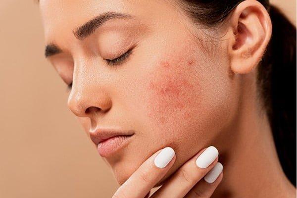 Irritación, resequedad y brotes, algunos de los síntomas del maskné. Foto Pixabay